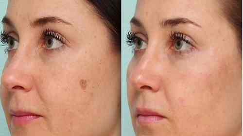 skin spot